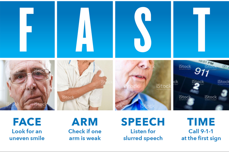 With Strokes Time Is Of Essence >> Spot A Stroke Fast